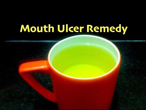 Mouth Ulcer Home Remedy  Canker Sores