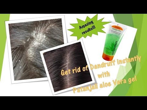 Magical remedy to get rid of dandruff with Patanjali Aloe vera gel