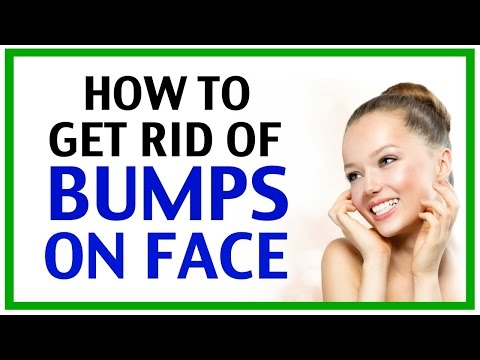 How To Get Rid Of Bumps On Face | How To Get Rid Of Bumps On Your Face