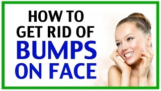 How To Get Rid Of Bumps On Face How To Get Rid Of Bumps On Your Face