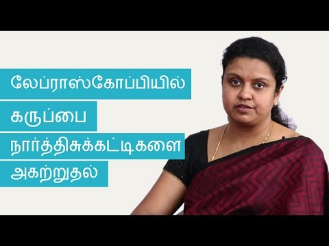 Fibroids and Laparoscopic Myomectomy | Tamil