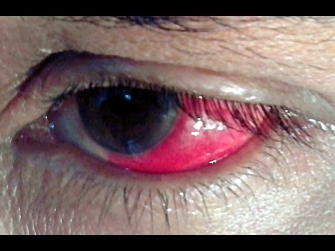 RED EYE -- Top 10 Causes