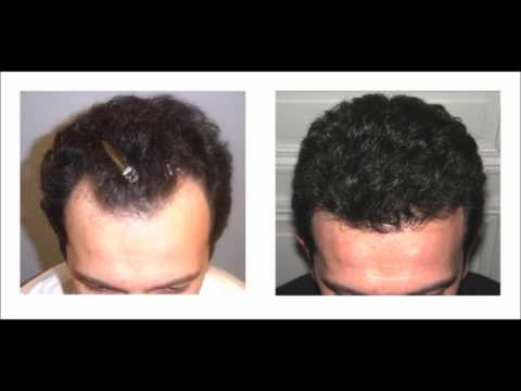 Natural Way To Regrow Lost Hair - How To Use Virgin Coconut Oil For Hair Loss