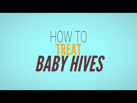Baby Hives -  How to Get Rid of Hives in Babies and Toddlers