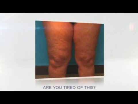 HOW TO GET RID OF CELLULITE IN 5 DAYS! NO EXERCISE REQUIRED!