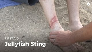 Download First Aid: Jellyfish Sting | First Aid Video