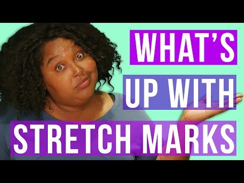 What About My Stretch Marks? - How to Prevent or Love Them // Fat and Fly AF   HISSYFIT