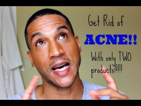 The Acne Solution: How I cleared up my ACNE