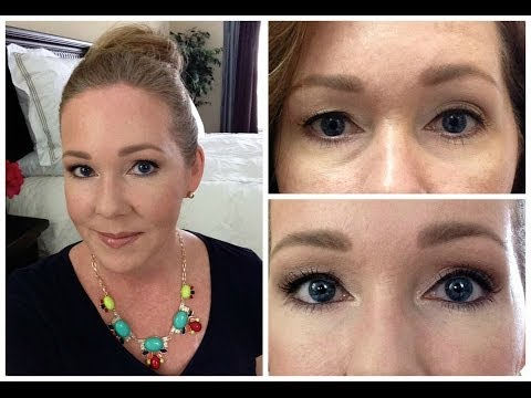 Juvederm Filler for Under Eyes w/Before & After Pictures