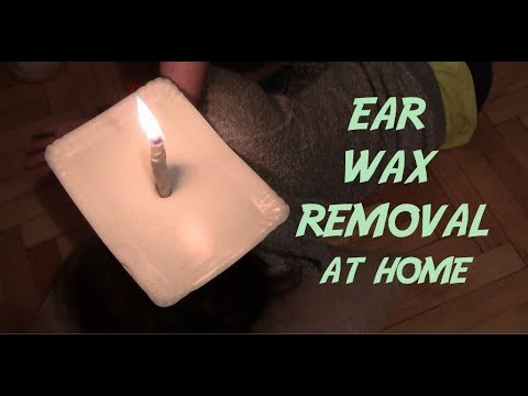 How to Removing Ear Wax With Candles