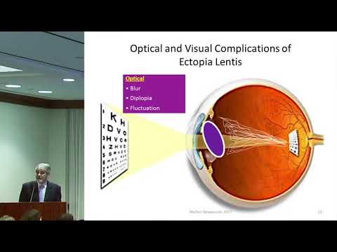 Ophthalmological Considerations in Marfan Syndrome