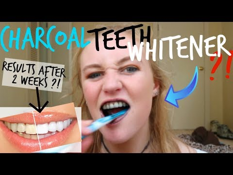 Charcoal Teeth Whitening Powder!!! Does It Work!?! | HOLZIE