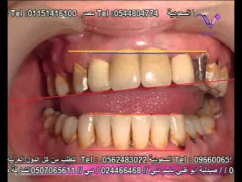 Dr Apraham Kojakian- An Aesthetic case-2 Massaya  A2Z  Bride Part 2-د.أبراهام كوجكيان -تجميل الأسنان