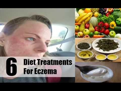 6 Valuable Diet Treatments For Eczema