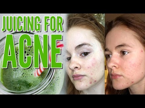 Juicing for Acne (How I Cleared my Acne in FOUR Days!)