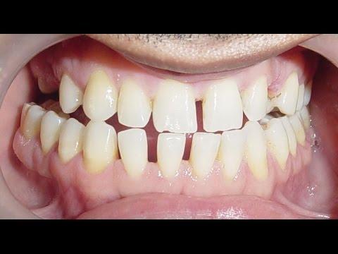 Close Teeth Gaps Fast! Alt. Version - Subliminals Frequencies Hypnosis Biokinesis