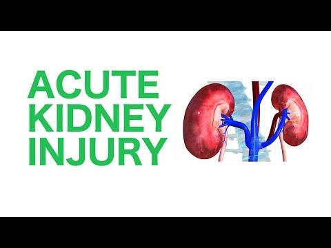 Acute Kidney Injury (AKI) || USMLE