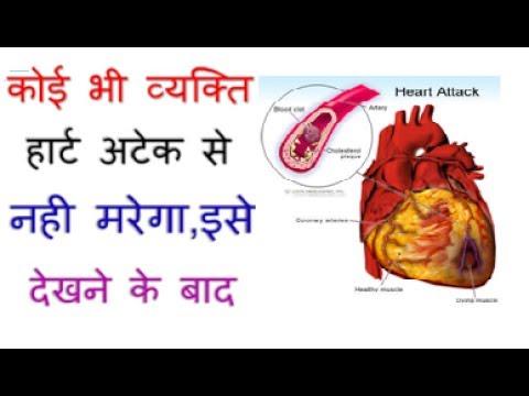 कभी नहीं आएगा हार्ट अटैक ये जरूर करें हार्ट अटैक से बचना हो तो//Health Tips on Heart Attack in Hindi