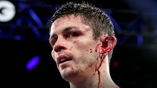 OUCH! Boxer Stephen Smith Gets Ear RIPPED in Half During Head Collision