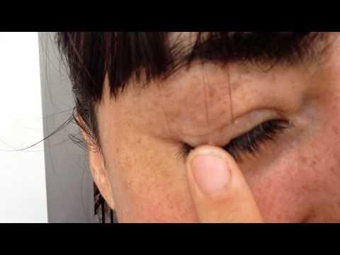 Natural skin tag removal day 1