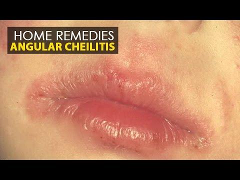Angular Cheilitis - Home Remedies (Natural Treatment)   Health Education