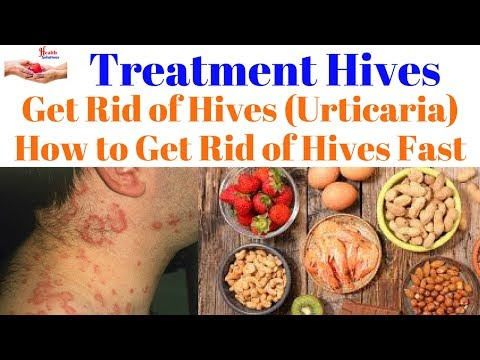 Treatment Hives - Get Rid of Hives (Urticaria) - How to Get Rid of Hives Fast  😀-