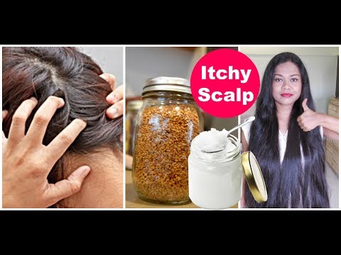 Get Rid Of ITCHY Scalp Fast | Best Tips & Home Remedies | Sushmita's Diaries