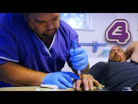 Pulling A Nail Out Of Your Hand With Pliers & More Grossest Moments From Bizarre ER!!
