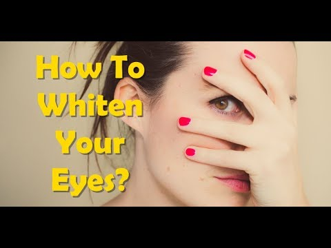 How To Whiten the Whites Of Your Eyes And Get Rid Of Dull Yellow Eyes