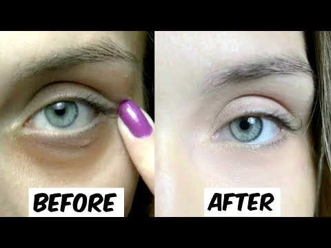 How To Remove Dark Circles Permanently In Just 5 Days