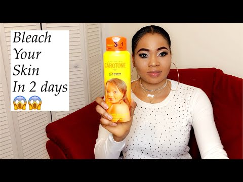 2 days skin bleaching cream /stretch marks and dark knuckles my honest review ...
