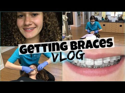 Getting Braces Vlog