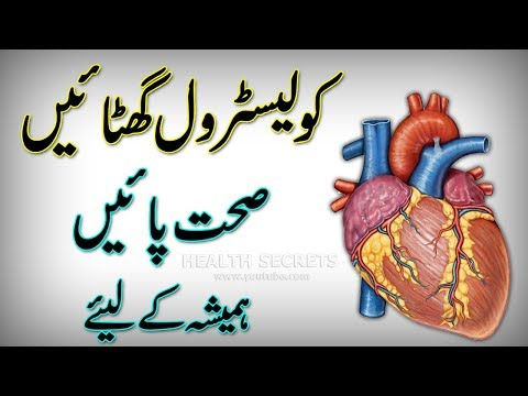 How To Lower Bad Cholesterol At Home || Cholesterol Control || Cholesterol Levels || In Urdu/Hindi