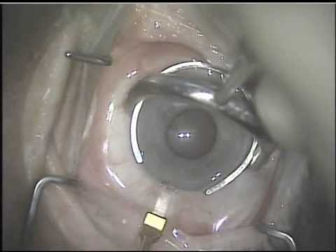 Eye Care After Cataract Surgery