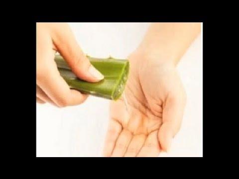 Home Remedies to Cure Sunburn on Dark Skin : Skin Care Tips