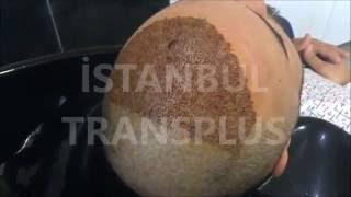97 Saç Ekimi Sonrası 3. Gün Köpük Ile Ilk Yıkama Işlemi İstanbul Transplus Saç Sorunları Merkezi