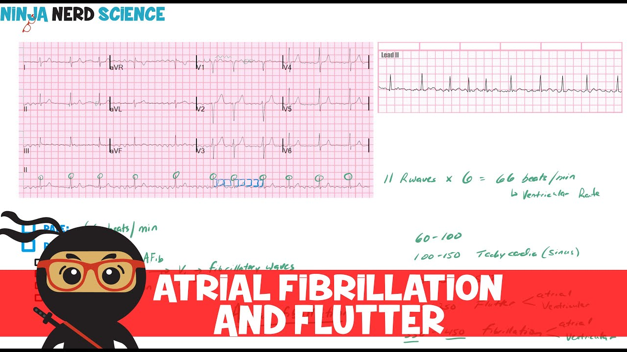 Rate and Rhythm | Atrial Fibrillation and Atrial Flutter