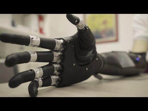 Xxx Mp4 Adam 39 S Hand La Mano Bionica Inventata Da Una Startup Pugliese 3gp Sex
