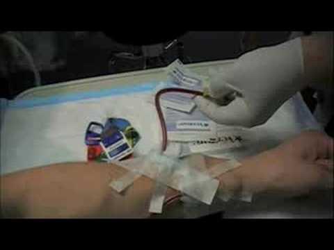 Dialysis Part I