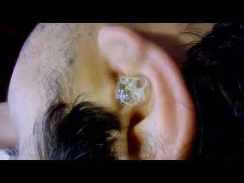 Hydrogen Peroxide in Ear