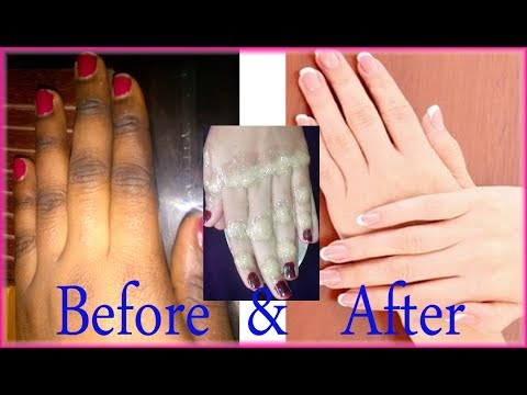 How to Lighten dark Knuckles Naturally at Home | Get Fair Finger Joints Naturally