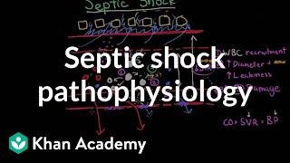 Septic shock - pathophysiology and symptoms | NCLEX-RN | Khan Academy