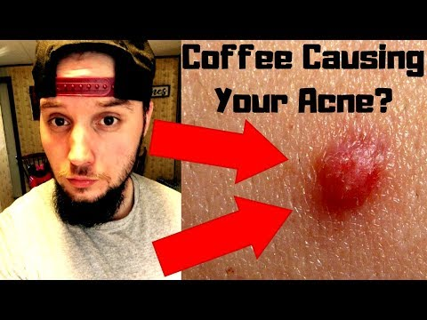 Does Coffee Cause Acne? - 2 WEEKS WITHOUT CAFFEINE!