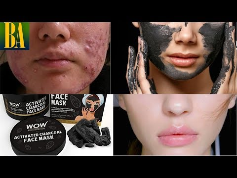 WOW Activated Charcoal Face Mask to Get Rid of Pimples & Black Heads/White Heads | Fairness & Glow