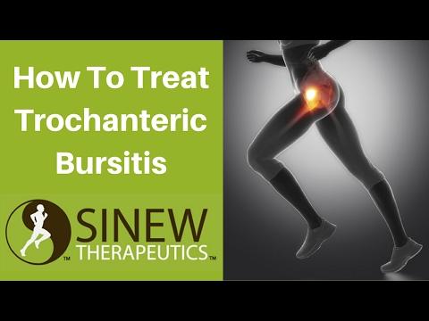 How To Treat Trochanteric Bursitis and Speed Recovery