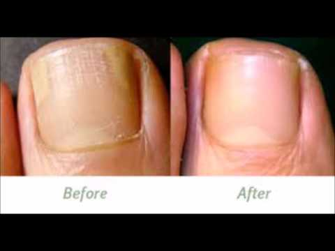 How Effective Is Coconut Oil - For Japanese Toenail Fungus Laser Treatment