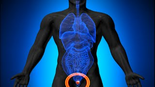 How to Treat an Enlarged Prostate Naturally - Enlarged Prostate Cure