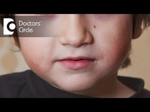 How to get rid of moles on face & neck? - Dr. Sudheendra Udbalker