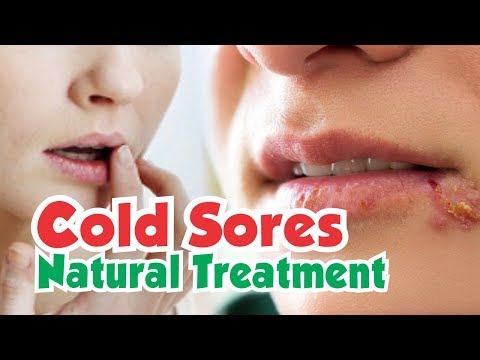 A Powerful Way to Treat Cold Sores | Proven Natural Treatment