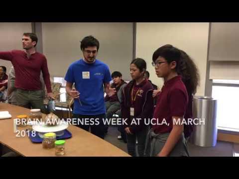 Brain Awareness Week 2018   UCLA Health